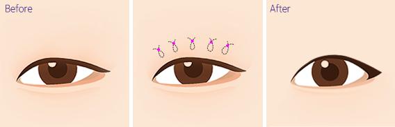 비절개눈매교정